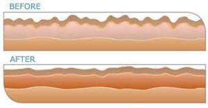 DermaOxy effect huid